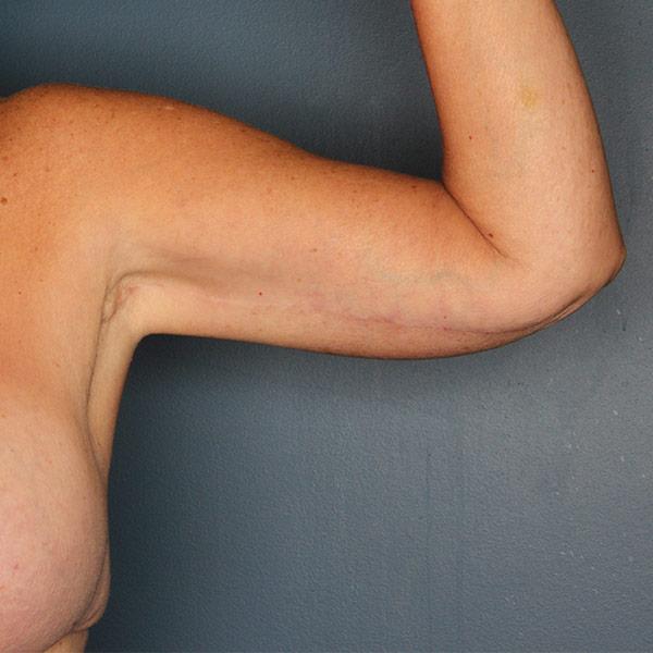 Arm lift patient after 1