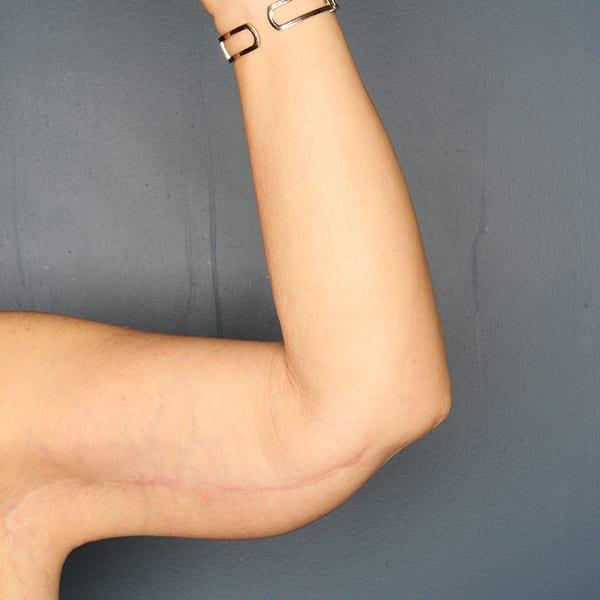 Arm lift patient after 2