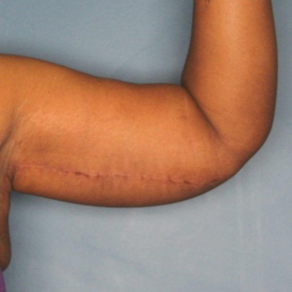 Arm lift patient after 3