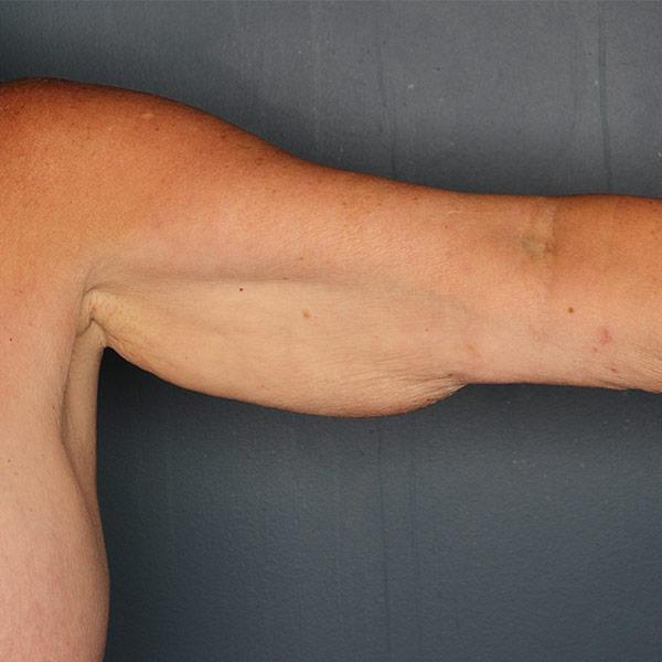 Arm lift patient before 1