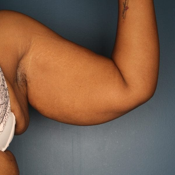 Arm lift patient before 3