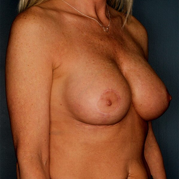 Breast Augmentation After-3