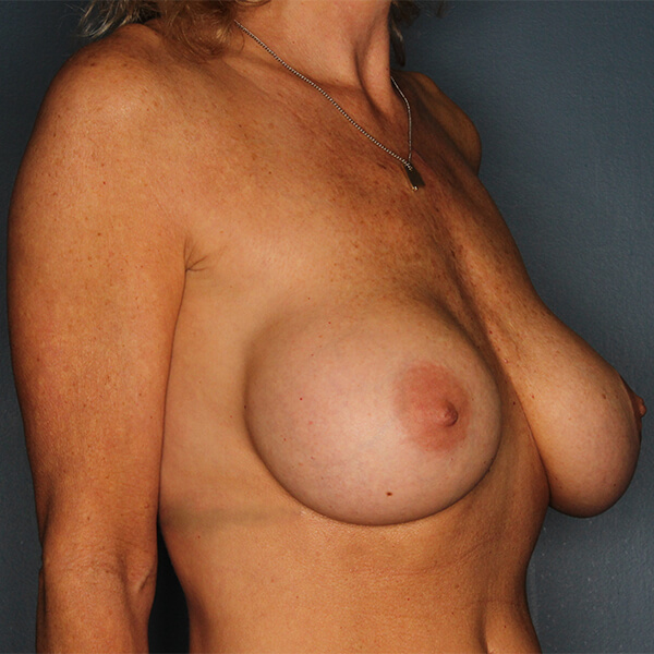 Breast Augmentation Before-3