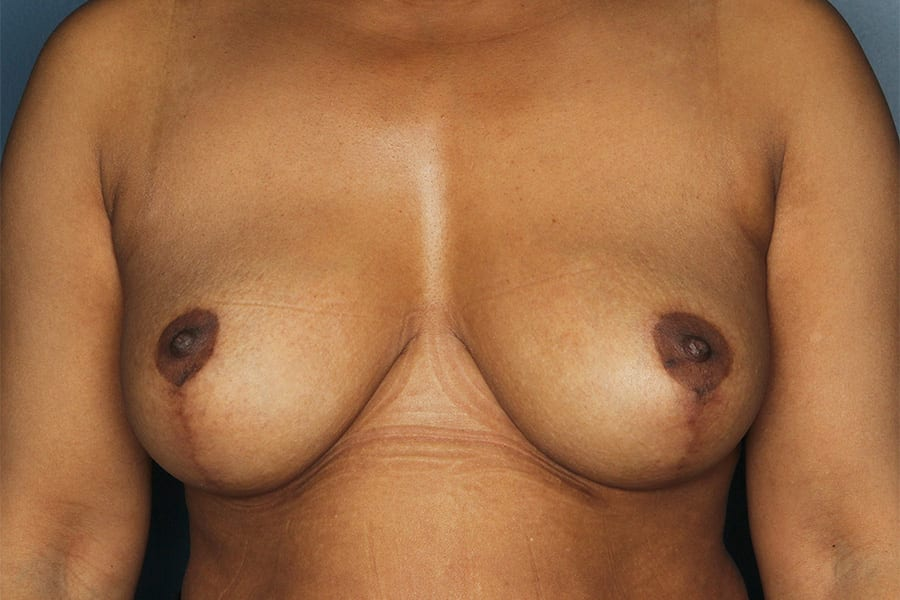 Breast lift patient after 1