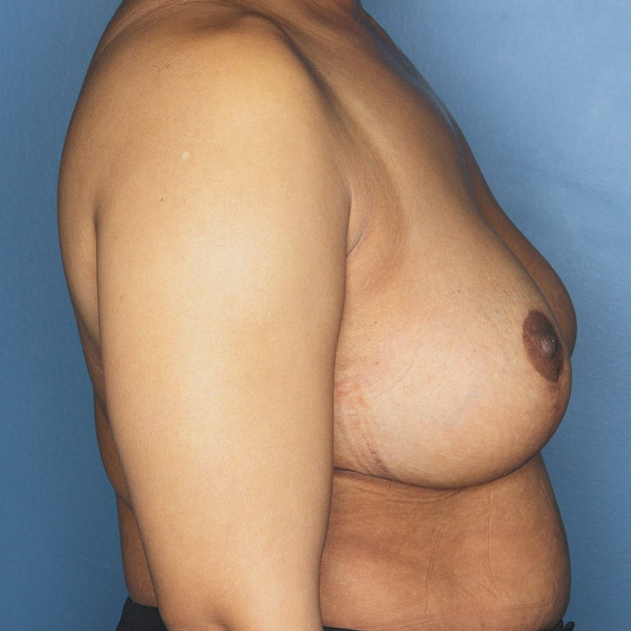 Breast lift patient after 3