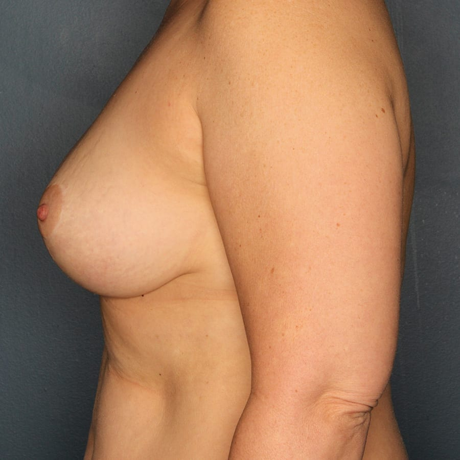 Breast lift patient after 4