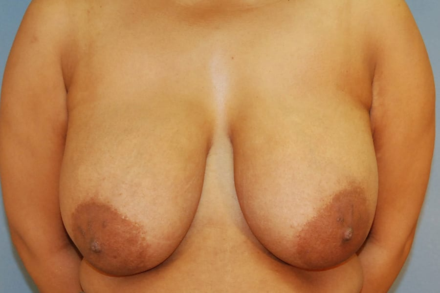 Breast lift patient before 1