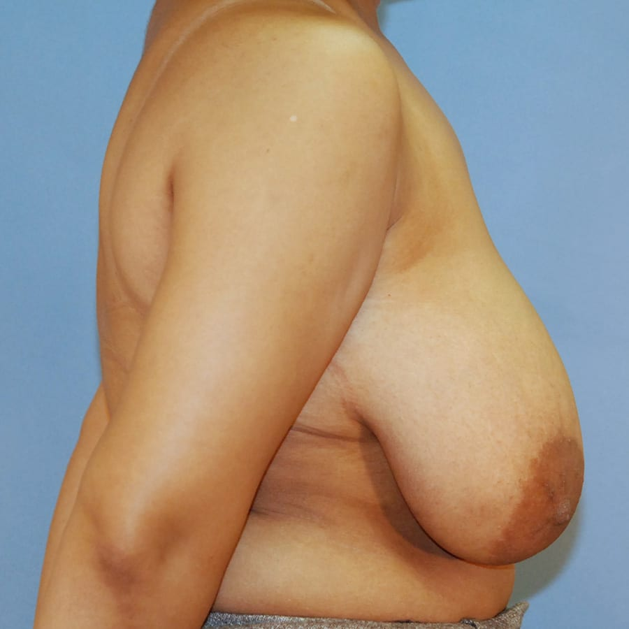 Breast lift patient before 3