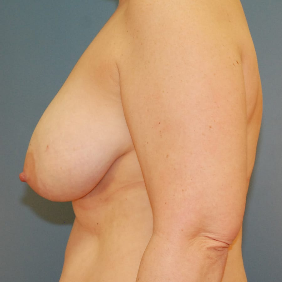 Breast lift patient before 4