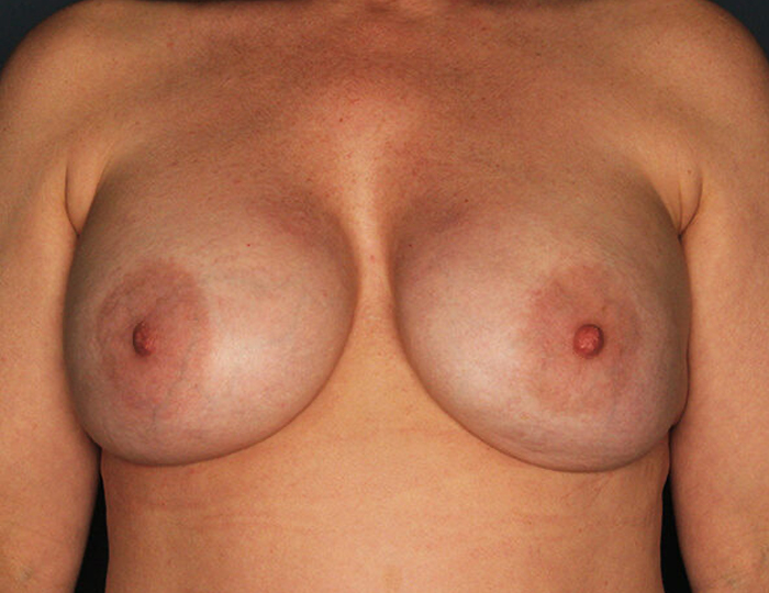 Implant Based Nipple Sparing Breast Reconstruction patient after 1