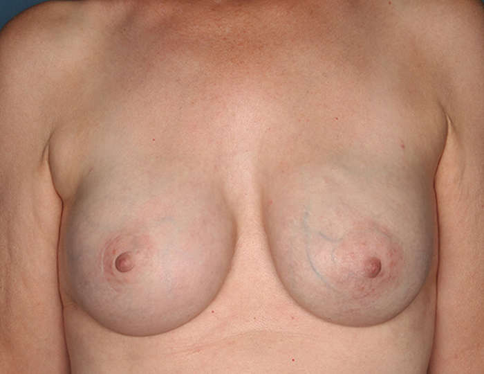 Implant Based Nipple Sparing Breast Reconstruction patient after 2