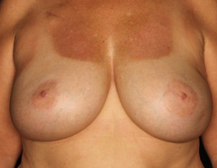 Implant Based Nipple Sparing Breast Reconstruction patient after 3