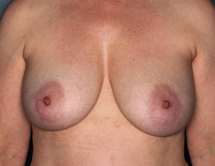 Implant Based Nipple Sparing Breast Reconstruction patient before 1