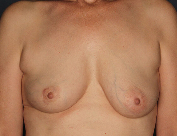 Implant Based Nipple Sparing Breast Reconstruction patient before 2