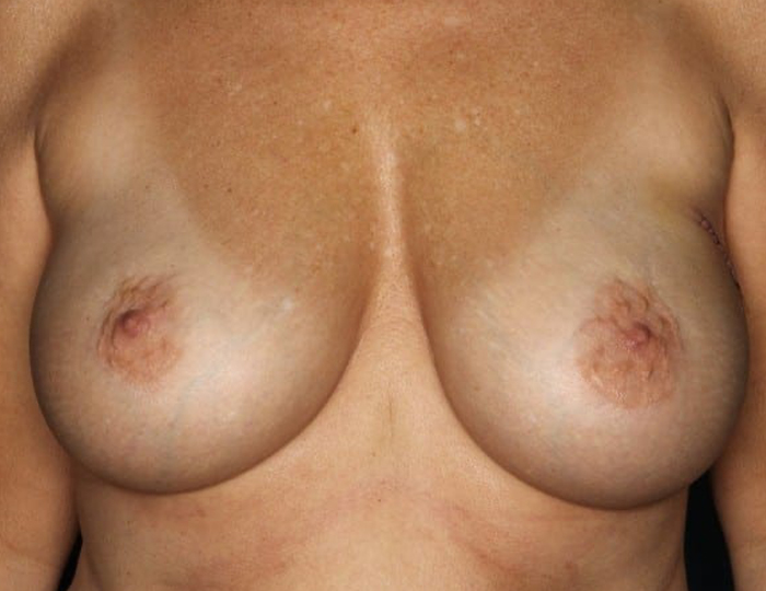 Implant Based Nipple Sparing Breast Reconstruction patient before 3