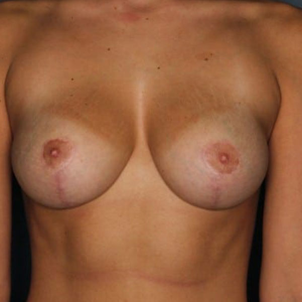 Breast Augmentation After-1