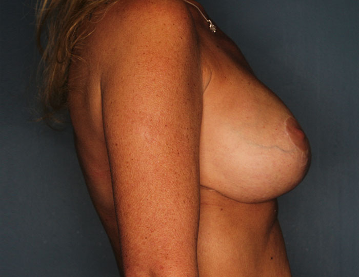 Breast revision patient after 4