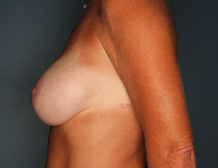Breast revision patient before 2