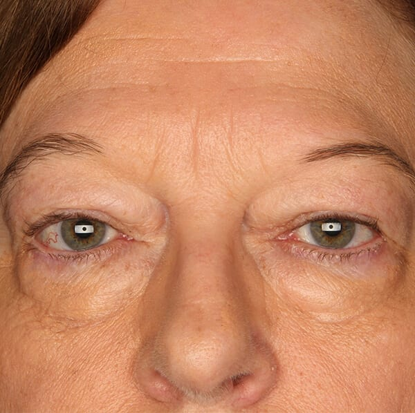 Eyelid lift patient before 1