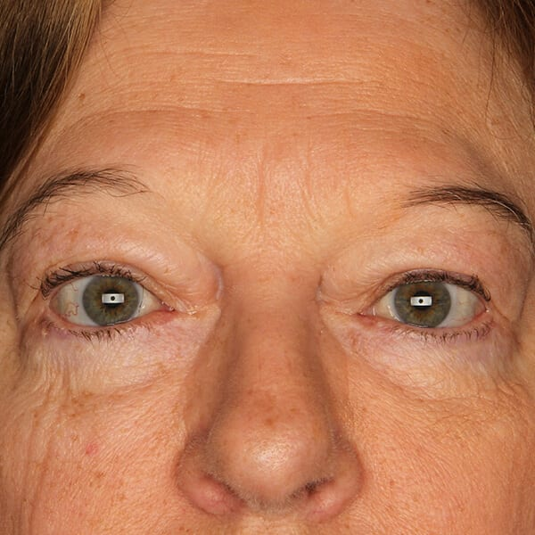 Eyelid lift patient after 1
