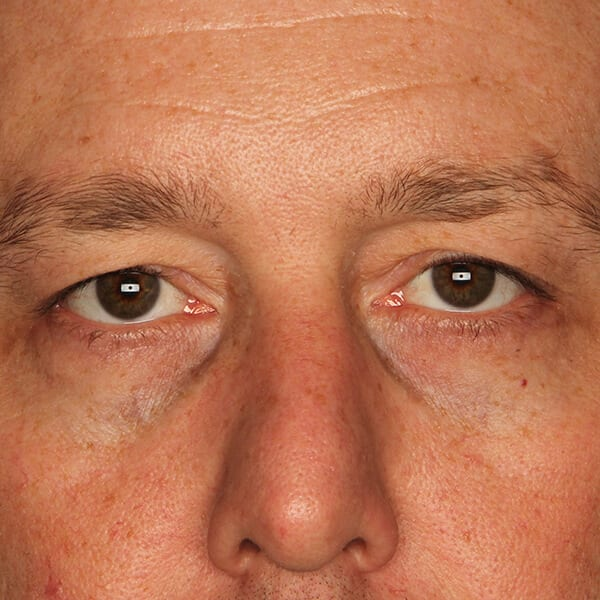 Eyelid lift patient before 2