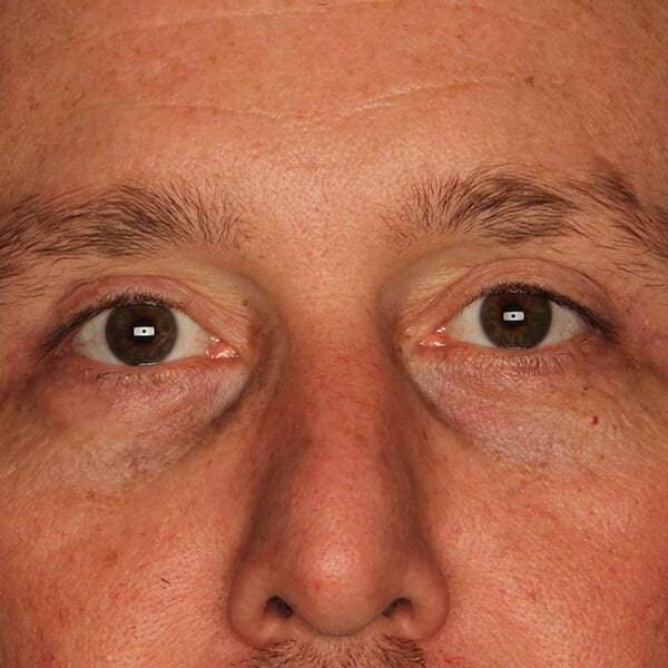 Eyelid lift patient after 2