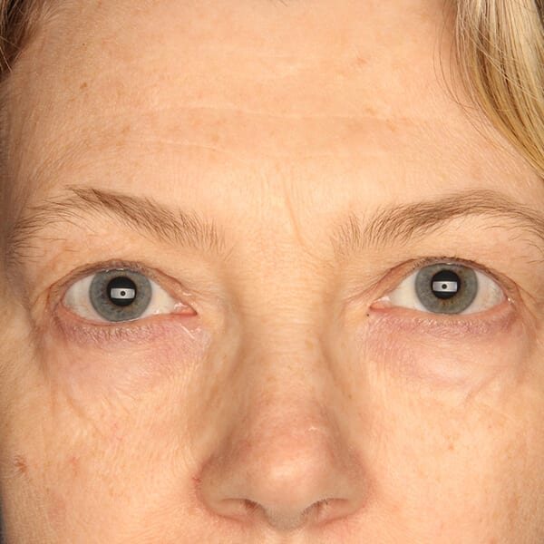 Eyelid lift patient before 3