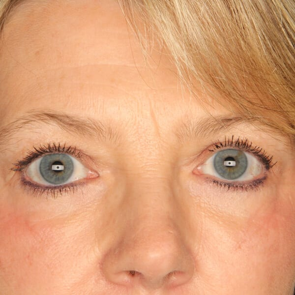 Eyelid lift patient after 3