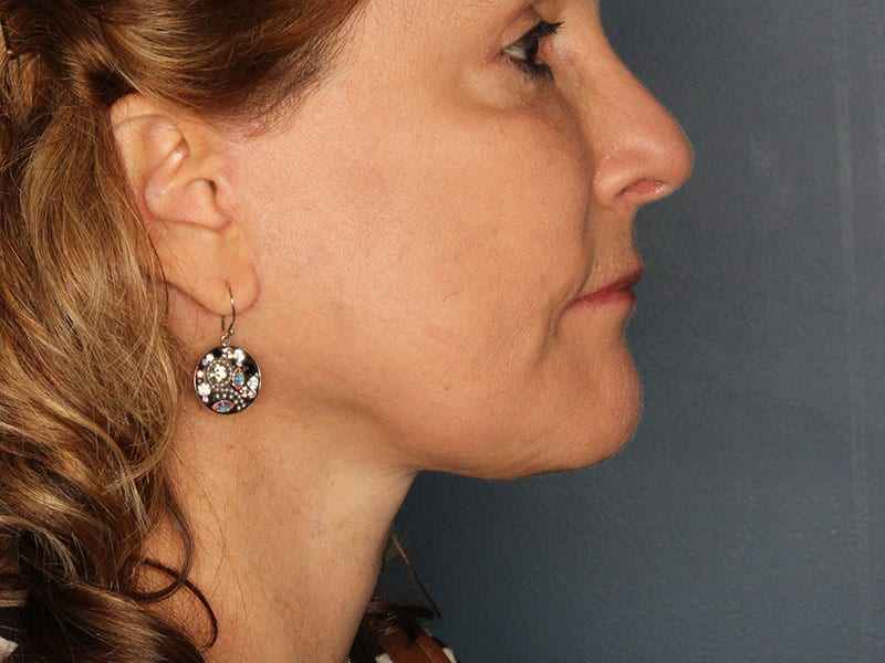 Facelift patient after 2