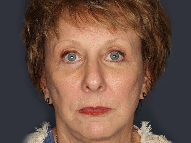 Facelift patient after 1
