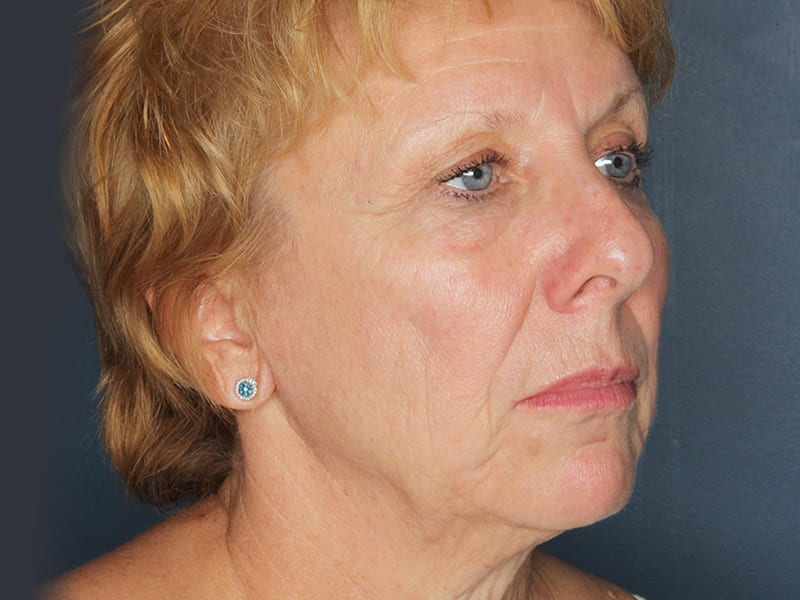 Facelift patient before 3