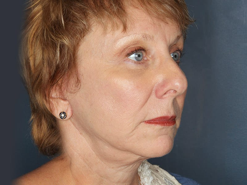 Facelift patient after 3