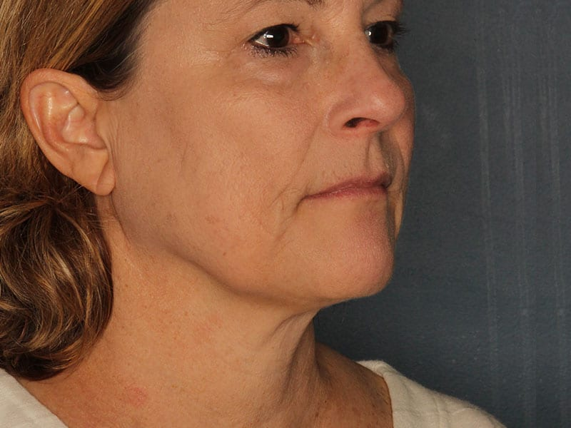 Facelift patient before 1