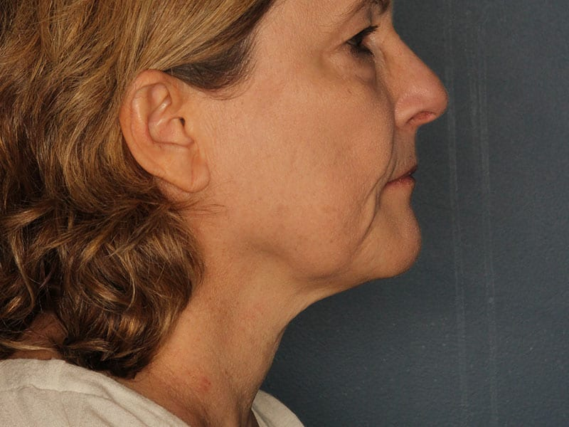 Facelift patient before 2
