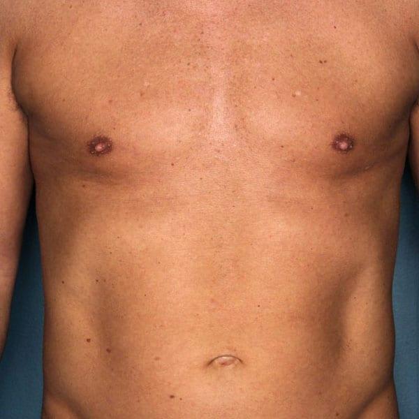 Liposuction patient after 1