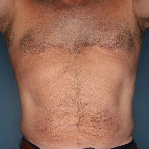 Liposuction patient after 2