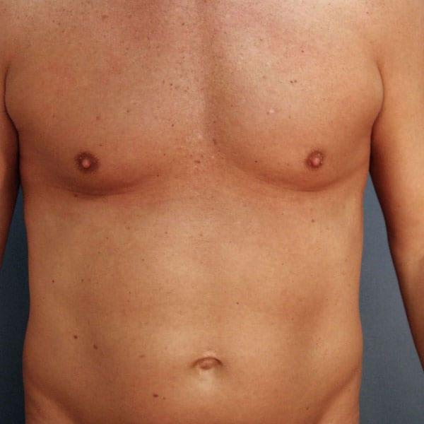Liposuction patient before 1