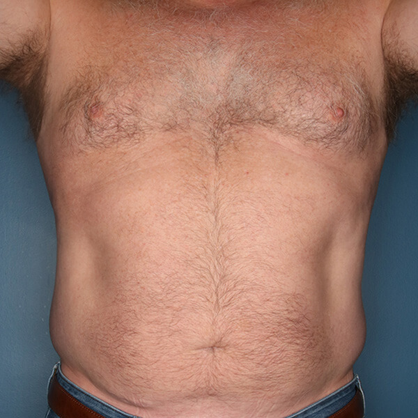 Liposuction patient before 2