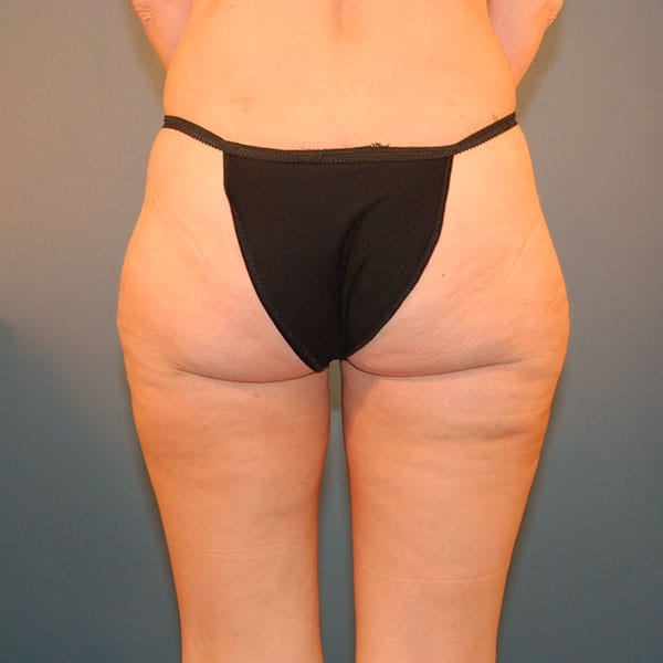 Liposuction patient after 2