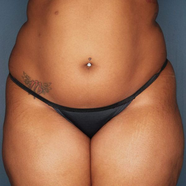 Liposuction patient before 1