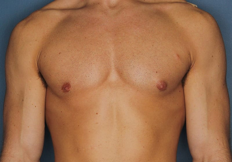 Breast reduction male patient after 1