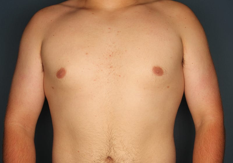 Breast reduction male patient after 2