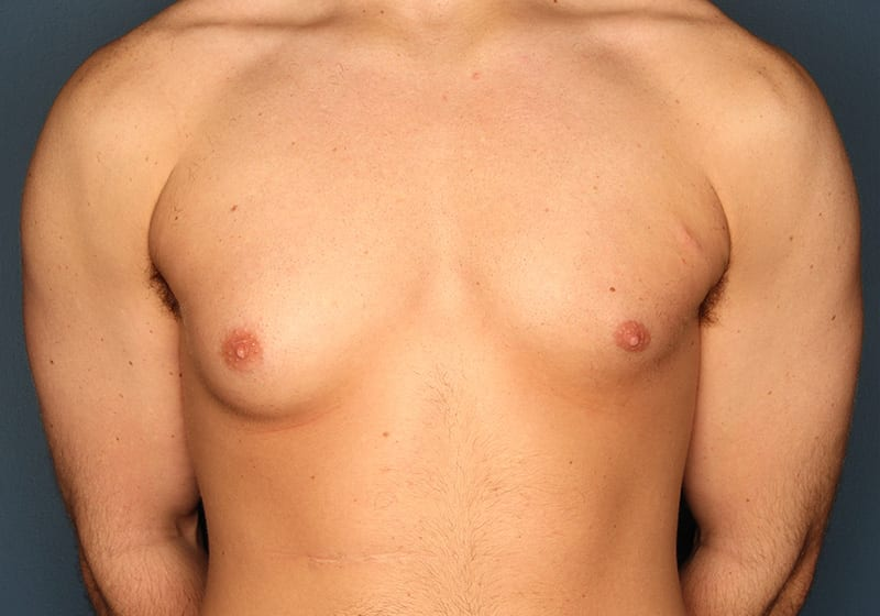 Breast reduction male patient before 1