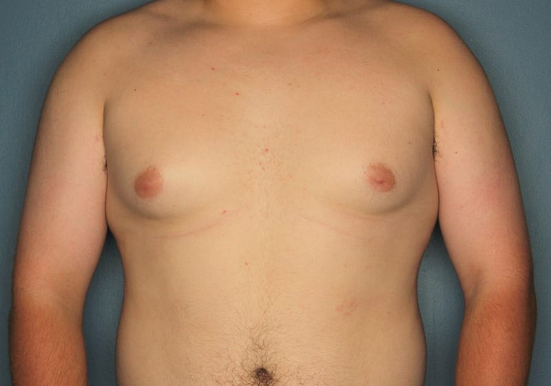 Breast reduction male patient before 2