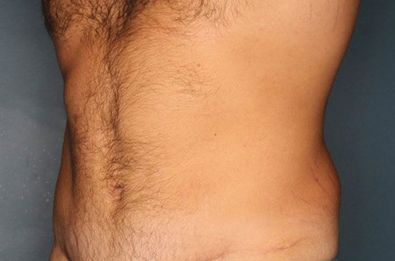 Tummy Tuck Patient After 2