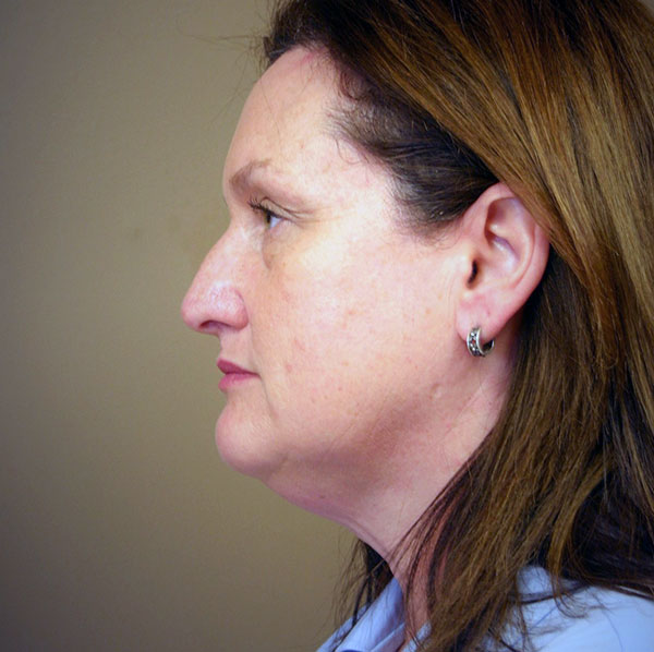 Neck lift patient before 3