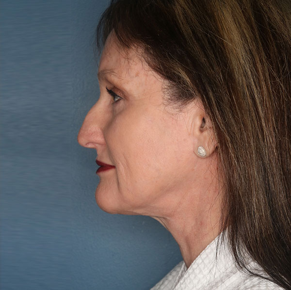 Neck lift patient after 3