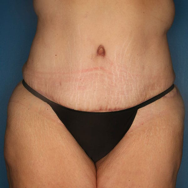 Breast Augmentation Patient After 2