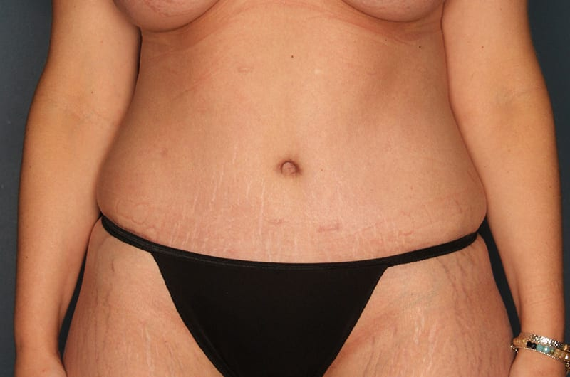 Tummy tuck patient after 1