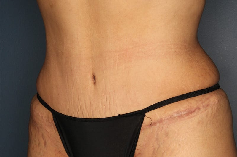 Tummy tuck patient after 3